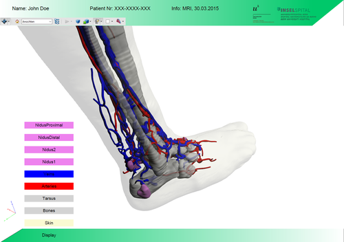 Design and Generation of Interactive 3D PDFs for Medical Data Analysis